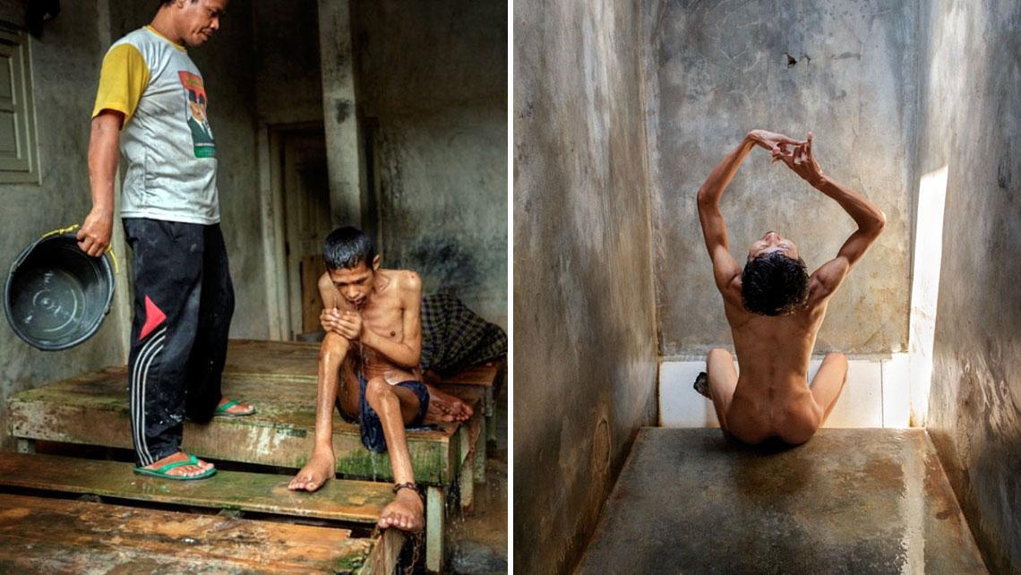 Endonezya'daki Ruh Hastalarının Şok Edici Fotoğrafları